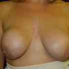Thumb p1130159