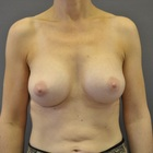Thumb after breast augmentation by marc pacifico frontal 2
