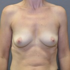 Thumb before breast augmentation by marc pacifico frontal 2