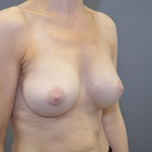 Thumb after breast augmentation by marc pacifico right oblique 2