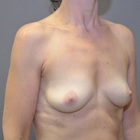Thumb before breast augmentation by marc pacifico right oblique 2