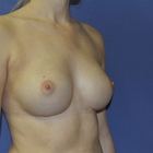 Thumb after breast augmentation by marc pacifico oblique 3