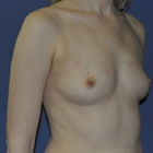 Thumb before breast augmentation by marc pacifico oblique 3
