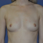 Thumb before breast augmentation by marc pacifico frontal 3