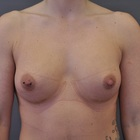 Thumb after breast augmentation by marc pacifico frontal 4