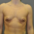 Thumb before breast augmentation by marc pacifico frontal 4
