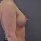 Thumb after breast augmentation by marc pacifico right lateral 4