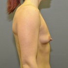 Thumb before breast augmentation by marc pacifico right lateral 4