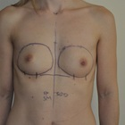 Thumb before breast augmentation by marc pacifico right frontal 5