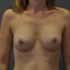 Thumb after breast augmentation by marc pacifico frontal 6