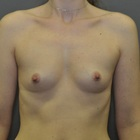 Thumb before breast augmentation by marc pacifico frontal 6