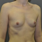 Thumb before breast augmentation by marc pacifico right oblique 6