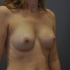 Thumb before breast augmentation by marc pacifico right right oblique 5