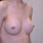 Thumb bba3551 6
