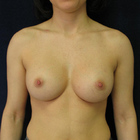 Thumb breast augmentation 2 post front