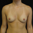 Thumb breast augmentation 2 pre front