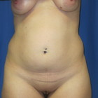 Thumb img 3555