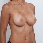 Thumb breast aug after 2